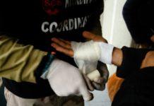 Na fotografiji migranti u Velikoj Kladuši sa povredama koje su dobili, kako tvrde, od hrvatske policije, novembar 2019.